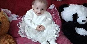 Erken yaşlanma hastalığıyla doğan 8 yaşındaki kız, yaşlılıktan hayatını kaybetti!